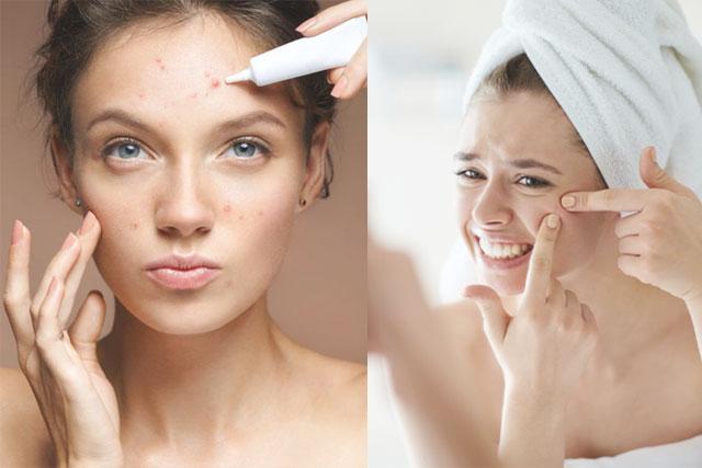夏天口罩暗瘡肌|婚前護膚急救|5招去暗瘡印、抗菌、擊退痘痘敏感肌問題