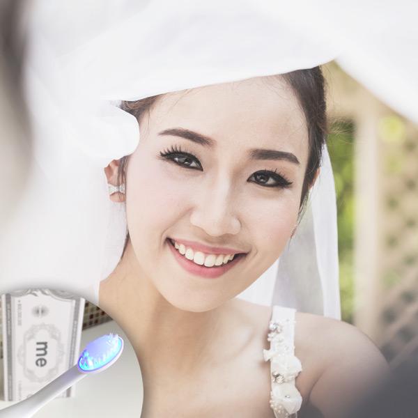【婚前美白牙齒】3個天然美白牙齒方法 | 編輯親試韓國藝人熱捧「7天見效」藍光美白牙刷